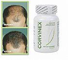 Corvinex suplemento capilar antiqueda - suplemento alimentar anti calvicie