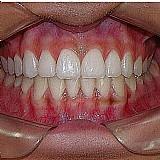 Dentadura total e parcial