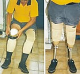 Produtos ortopedicos