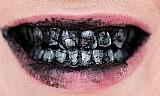 Carvoni-sorriso branco em ate 14 dias efeito profissional watsapp=(11)977163031