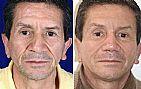 7 dias de lifting facial, que vao mudar a sua vida