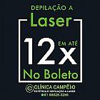 Depilacao a laser em brasilia em 12x no boleto