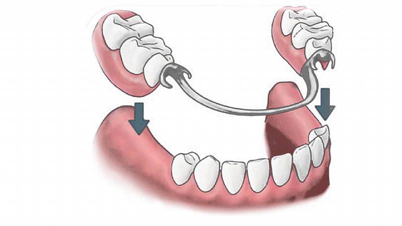 Proteses Dentarias