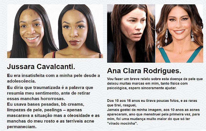 Como ter pele mais perfeita clean caps (leia a descricao)