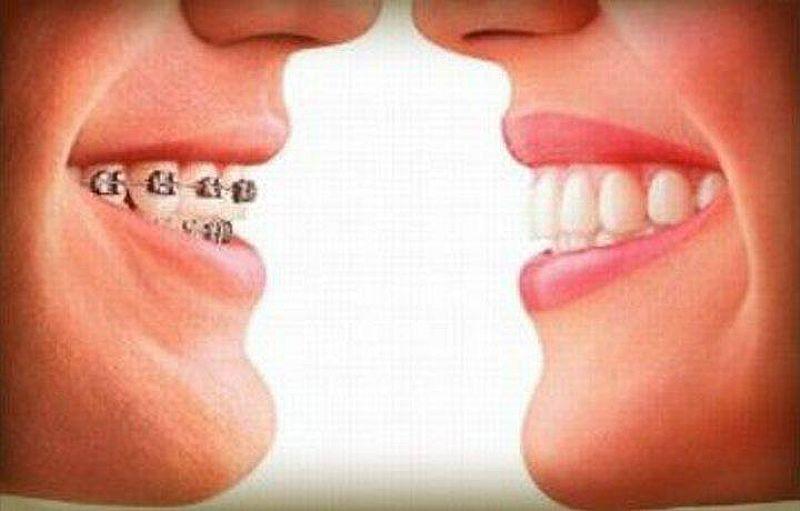 Plano dentario completo